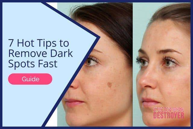 7 Hot Tips to Remove Dark Spots Fast Guide