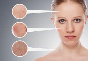 Facial Dark Spot Correctors