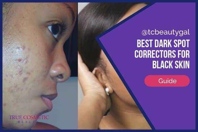 Best Dark Spot Correctors for Black Skin