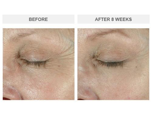Before and After ELASTIderm