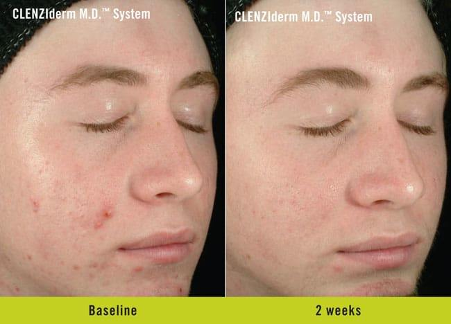 CLENZIderm Before and After