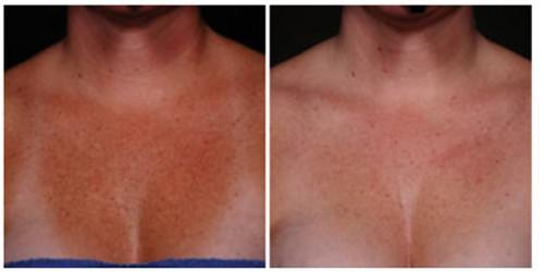 ELASTIderm Decolletage Before and After
