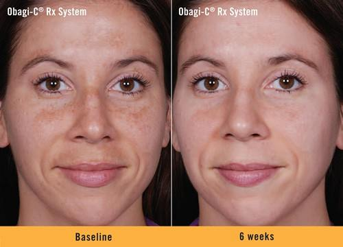 Obagi-C Rx System Before and After